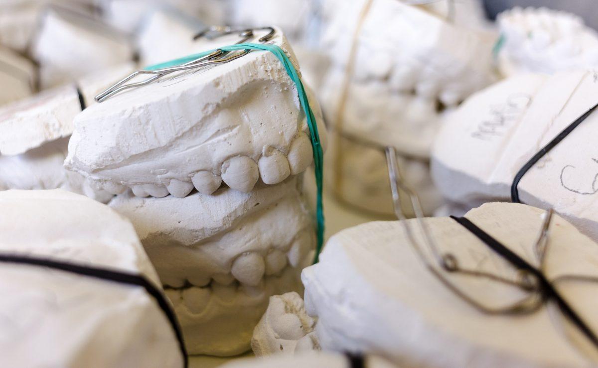 Złe podejście żywienia się to większe deficyty w zębach a również ich utratę
